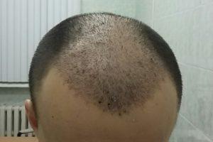 Эффективность пересадки волос